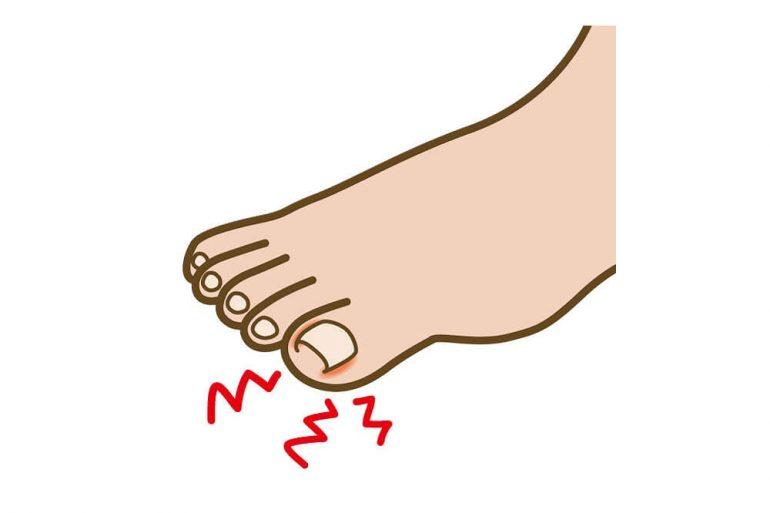 巻き爪・陥入爪